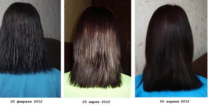 8 месяцев выпадают волосы