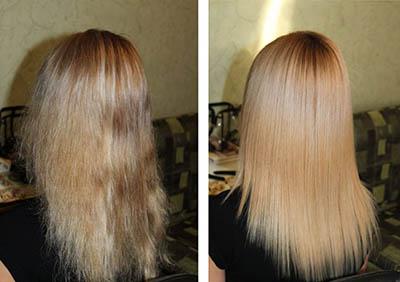 каутеризация волос до после
