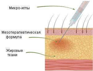что такое мезотерапия