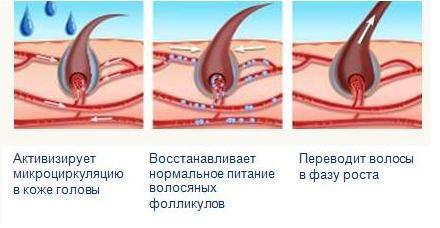 как действует миноксидил на волосы