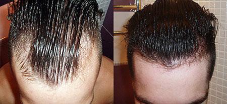 миноксидил от выпадения волос